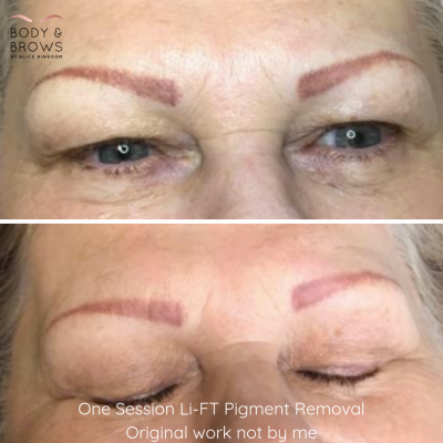 Remove or Correct Unwanted Eyebrows, Semi Permanent Makeup