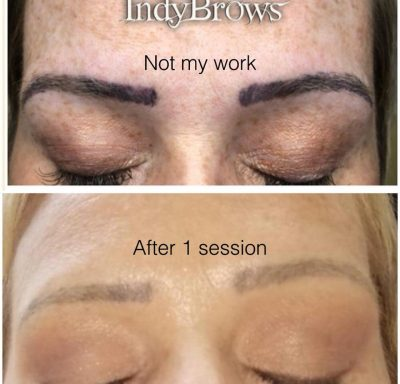 Remove or Correct Unwanted Eyebrows, Semi Permanent Makeup, Tattoo's