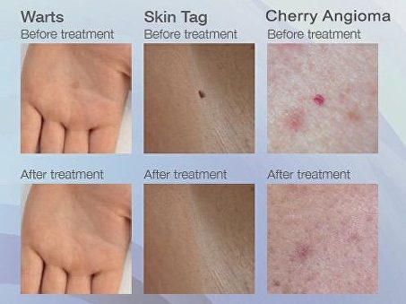 Skin Tag Milia Wart Verrcua Removal Body And Brows By Alice